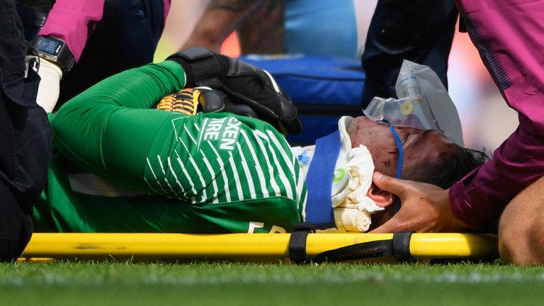 Το πρόσωπο του  Έντερσον μετά το χτύπημα του Μανέ (pic) | Sportsking.gr